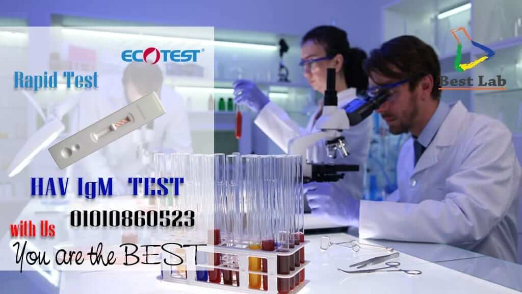 بست لاب للتجهيزات المعملية HAV ECOTEST HAV Rapid Test Detection ECOTEST HAV Rapid Test ECOTEST