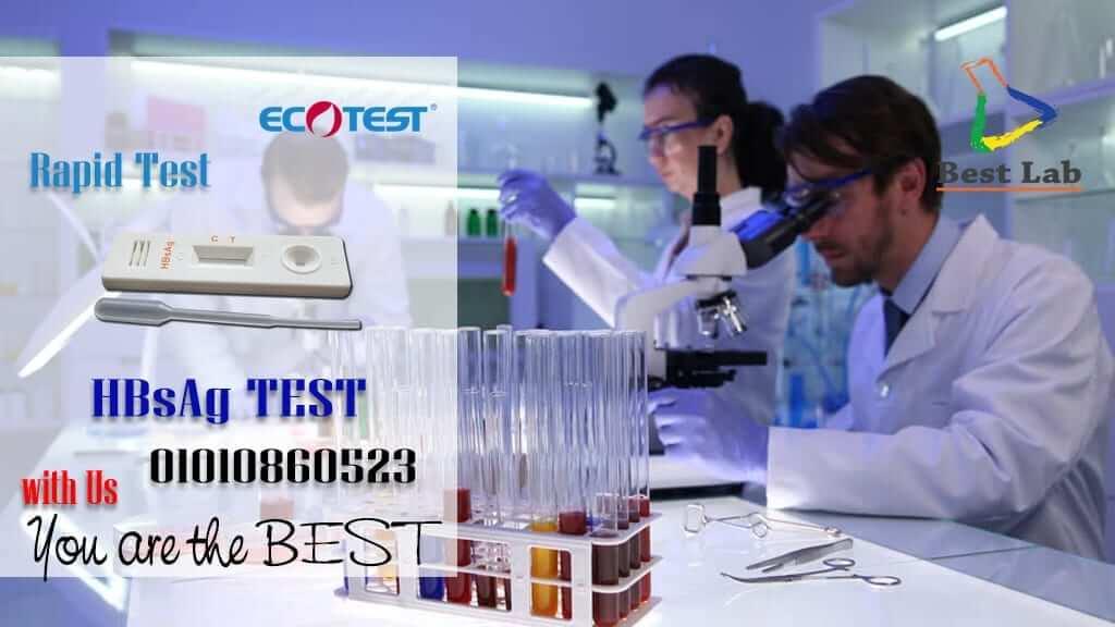 بست لاب للتجهيزات المعملية HBsag2 ECOTEST Virus B Rapid Test ECOTEST