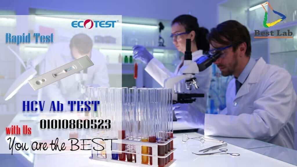 بست لاب للتجهيزات المعملية HCV2 ECOTEST Virus C Rapid Test