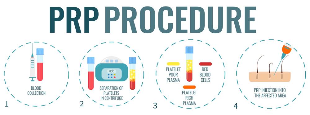 PRP procedure
